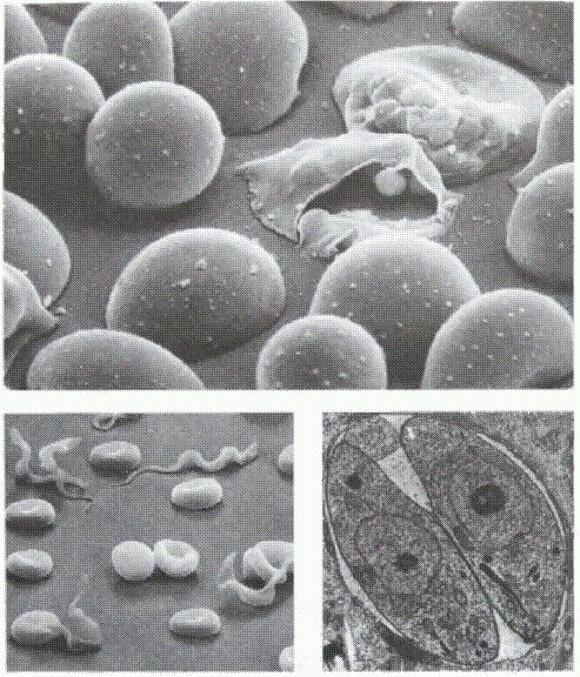 паразиты в венах человека