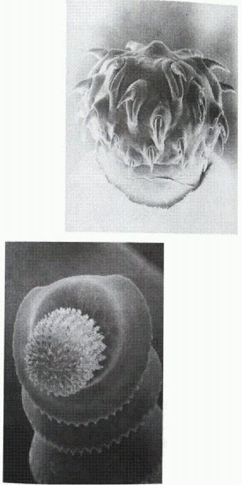 почему паразиты выходят из организма